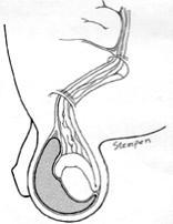 Hernia / Hydrocele Figure 1