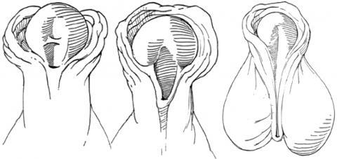Subcoronal, midshaft, penoscrotal