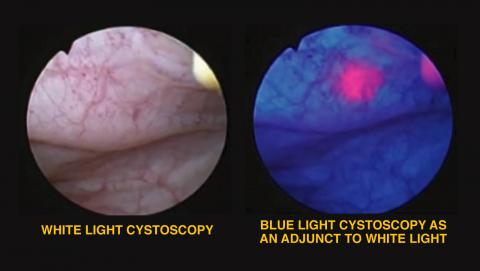 Blue Light Cystoscopy