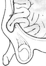 Hernia / Hydrocele Figure 2